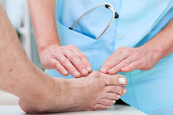 doctor examining bunion on patient's foot