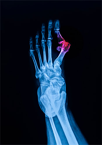 Xray of Bunion